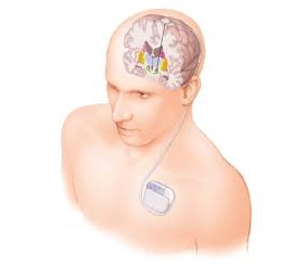 "Educational Course ""Deep brain stimulation in movement disorders treatment"" ."